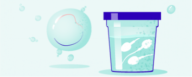 IVF mit eigenen Eizellen hero-image